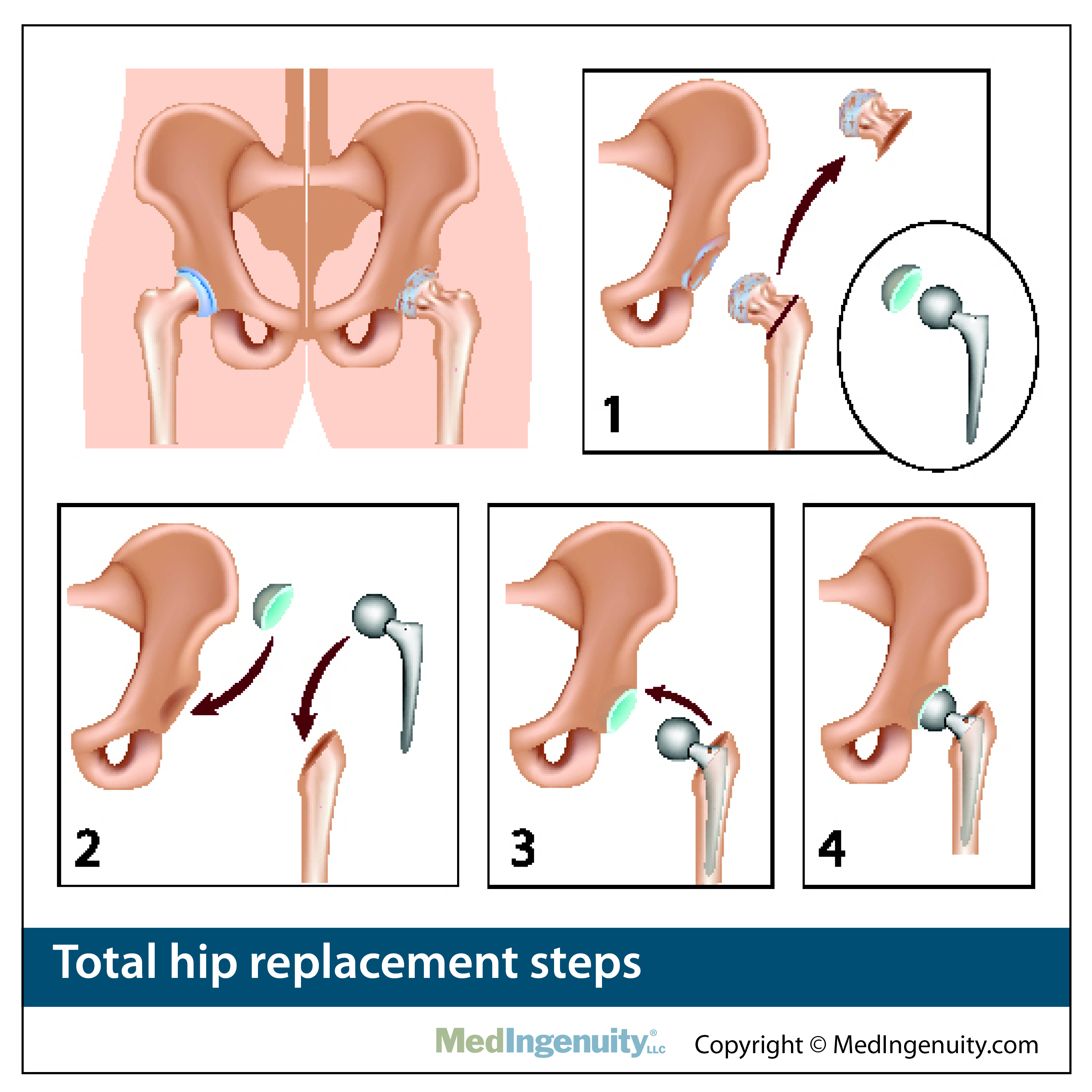 anatomy of total hip replacement steps