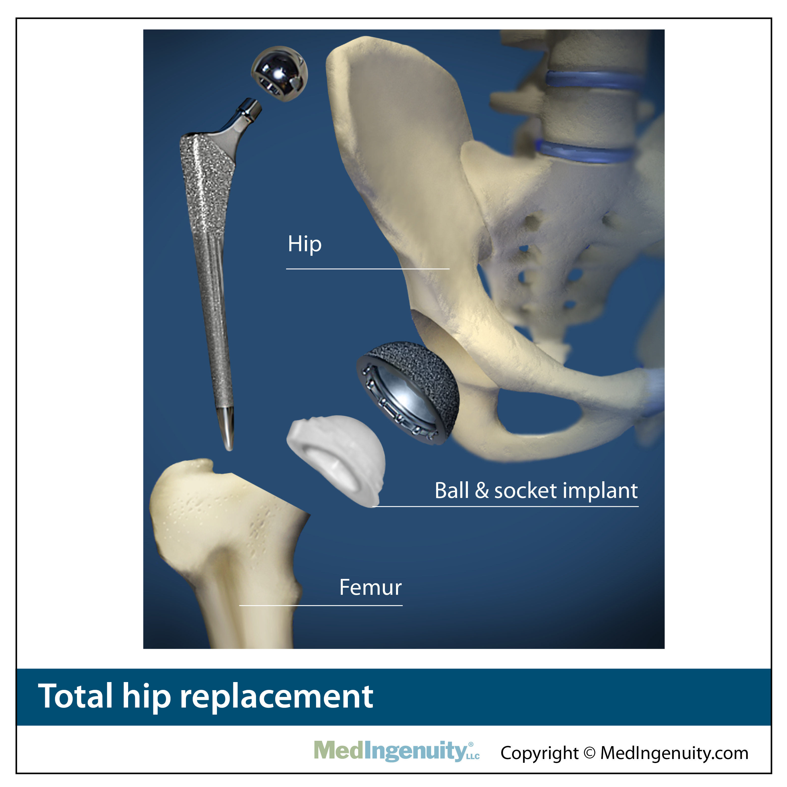 total hip replacement anatomy