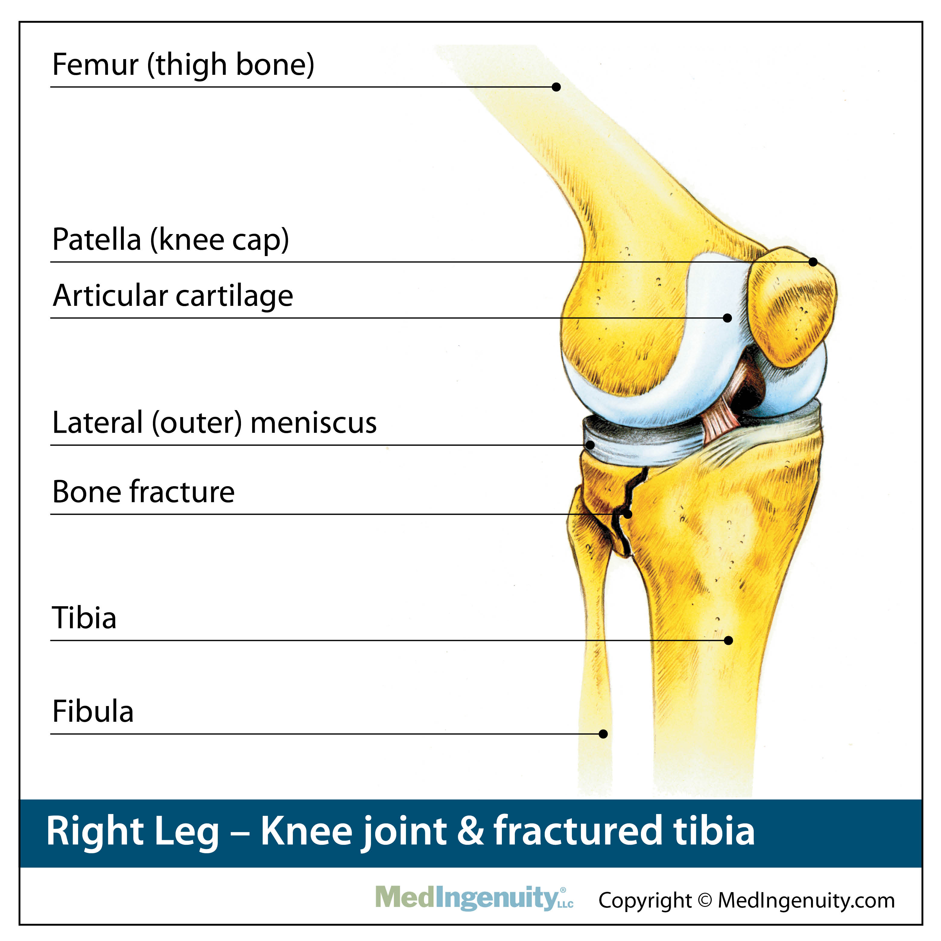 Knee Joint with fracture anatomy