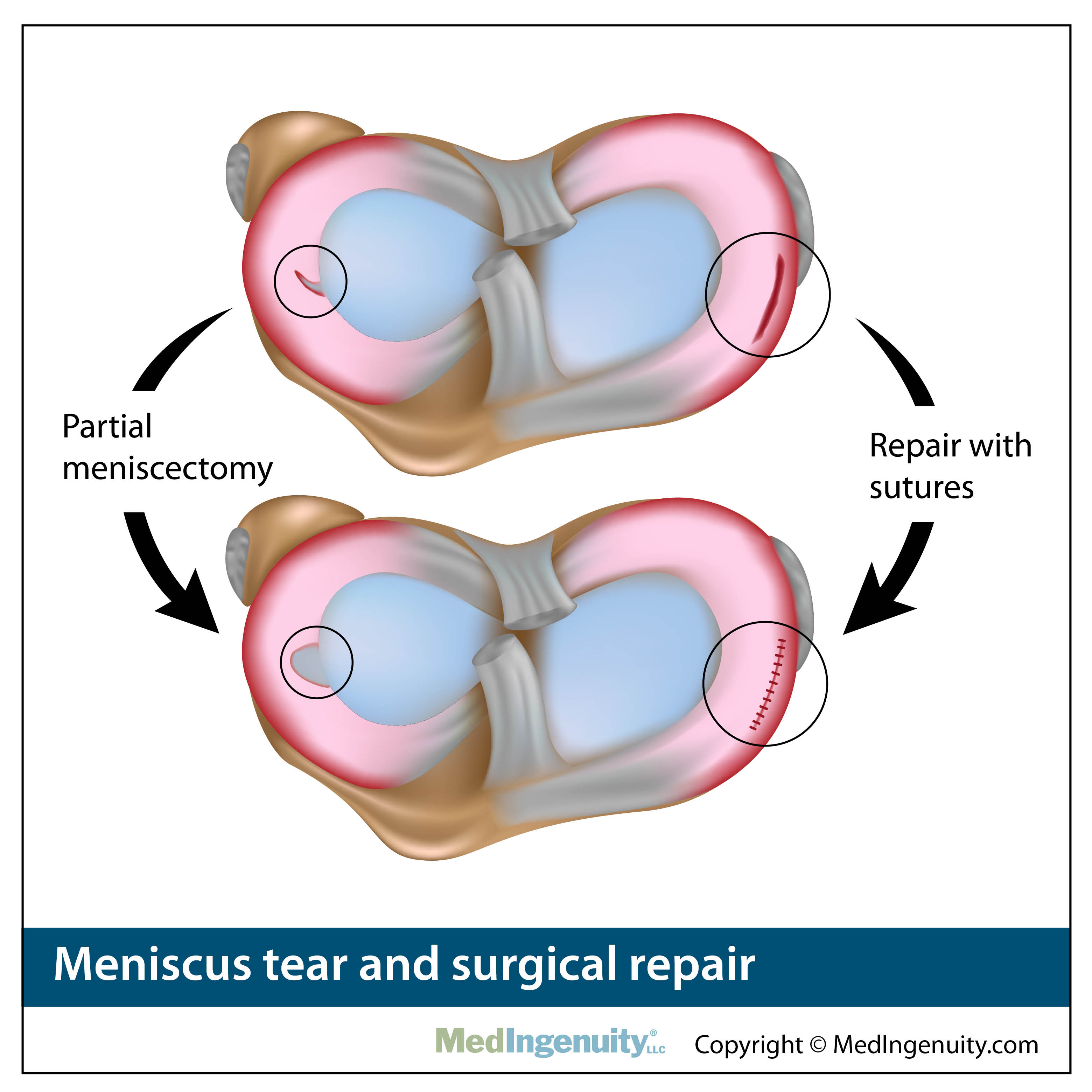 meniscus tear and surgical repair anatomy