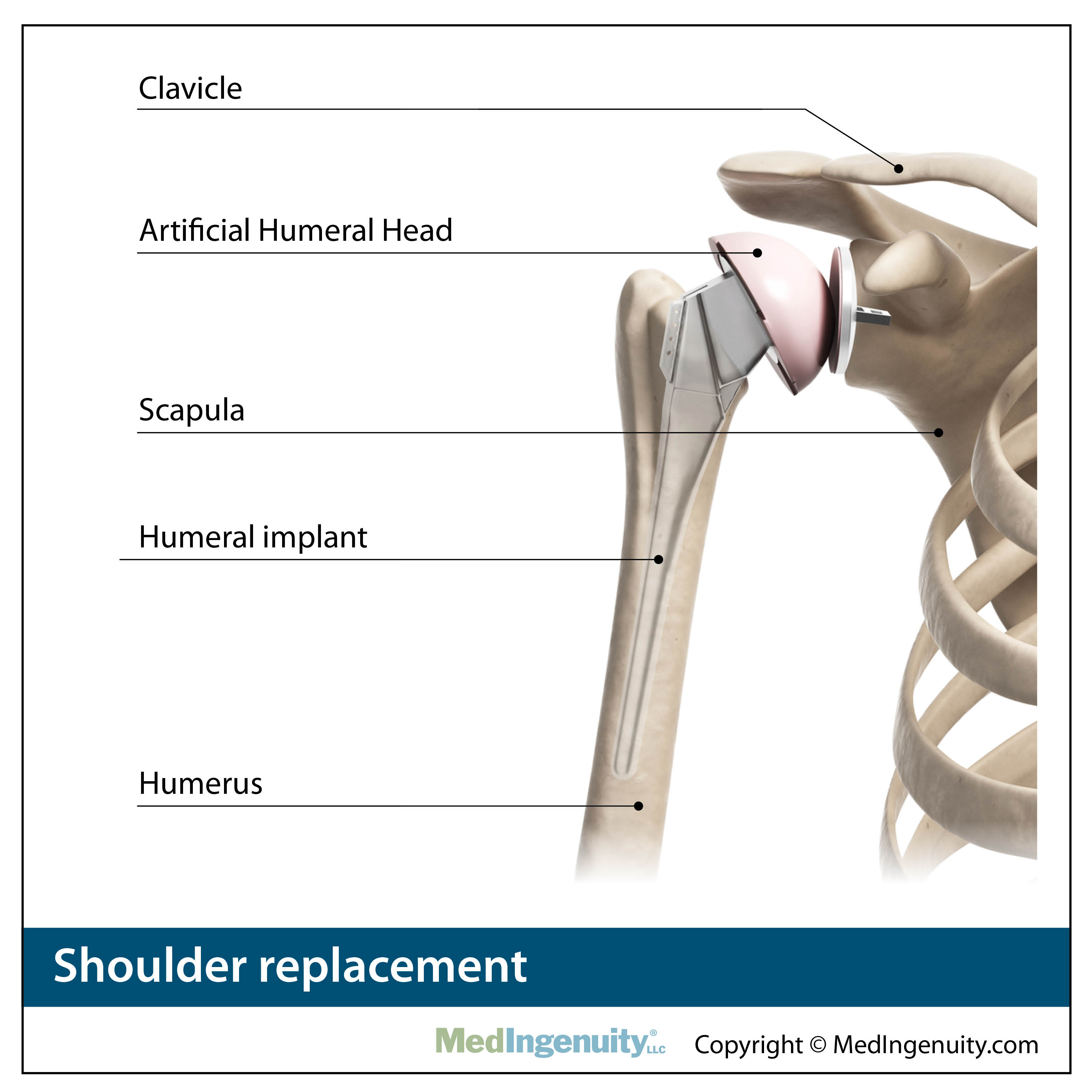 shoulder replacement anatomy